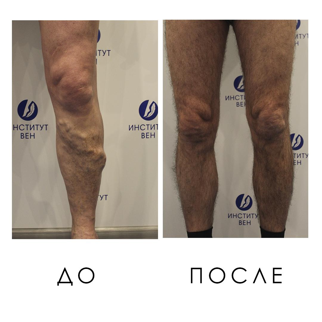 Фото До и После лечения варикоза ног - Институт Вен