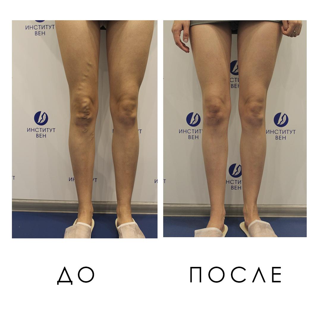 Фото До и После лечения варикоза пенным склерозированием - Институт Вен