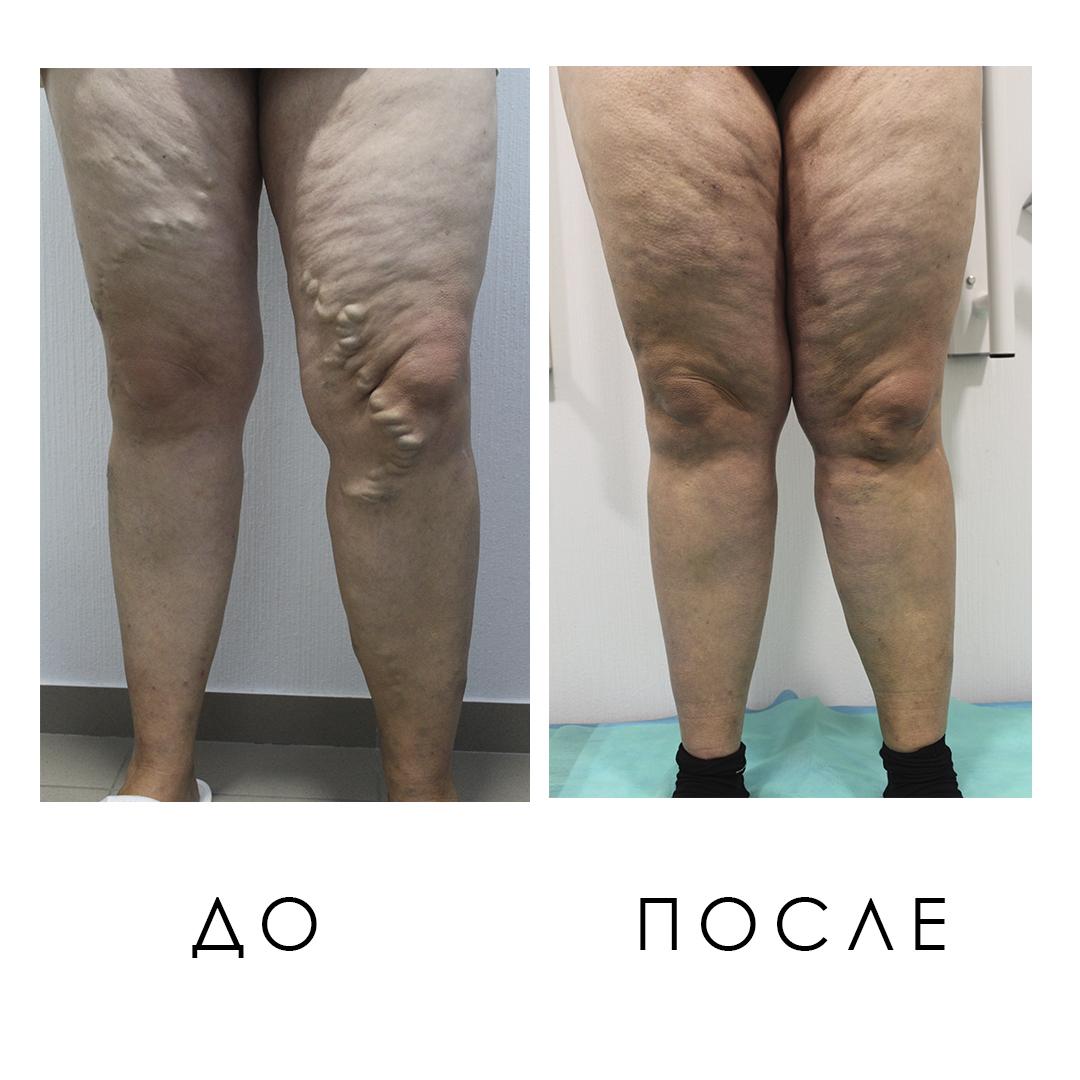 Фото До и После лечения варикозного расширения вен - Институт Вен