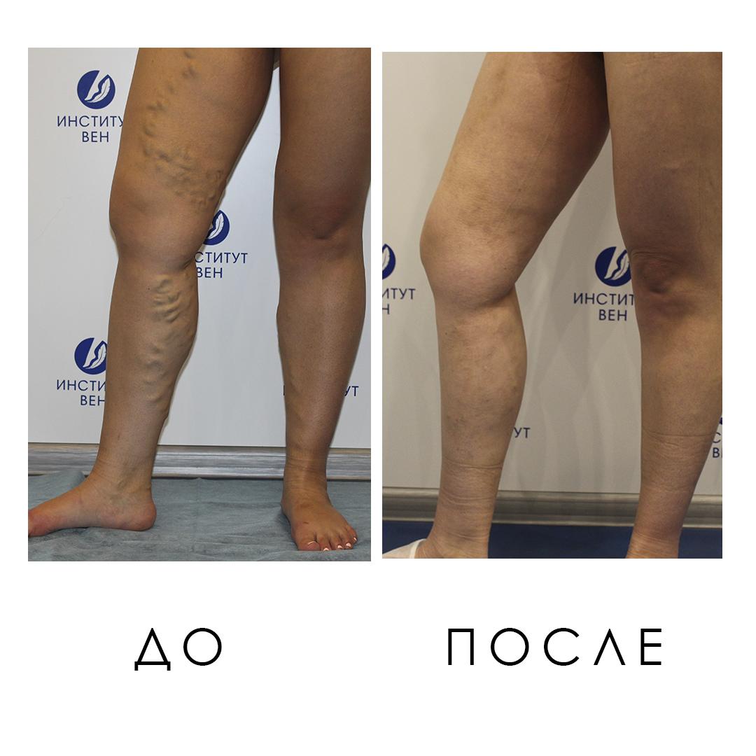 Фото До и После лечения варикоза лазерной коагуляцией - Институт Вен