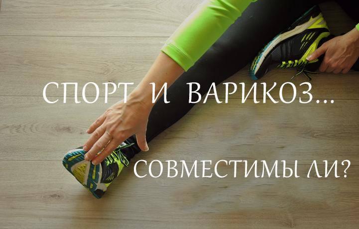 Можно ли заниматься спортом при варикозе ног